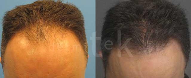 trasplante de pelo frente dermitek Bilbao