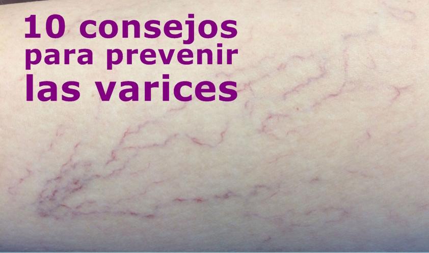 10 consejos para prevenir las varices