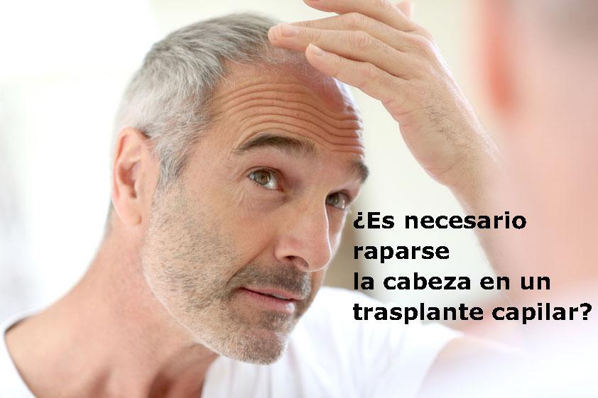 Es necesario raparse la cabeza en un Trasplante Capilar