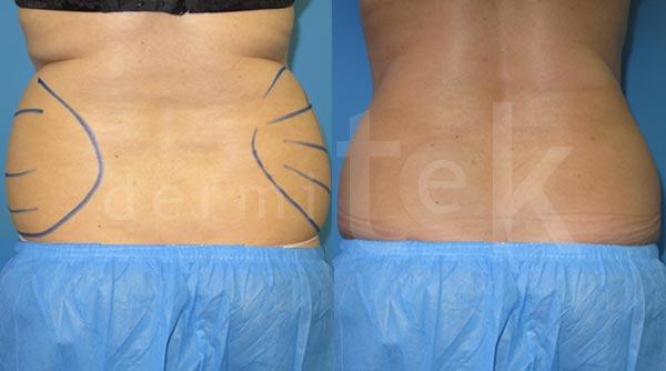 lipolaser tratamiento antes y despues