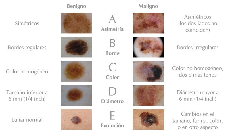 melanoma ABDCE lunares