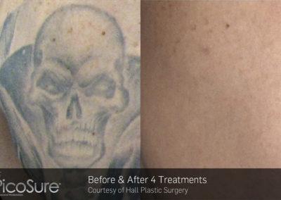 BA_PicoSure_Hall Plastic Surgery_Post4Tx_Tattoo