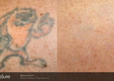 eliminacion-tatuajes-picosure 1