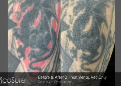 eliminacion-tatuajes-picosure 2