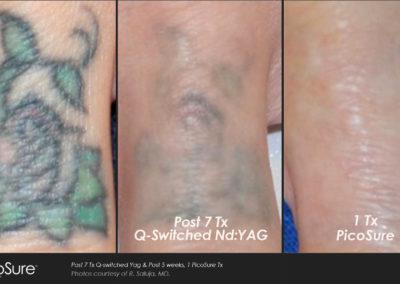 eliminacion-tatuajes-picosure 3