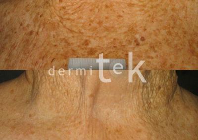 Rejuvenecimiento de la piel con multilaser