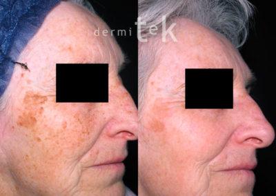 Laser Picosure rejuvenecimiento facial