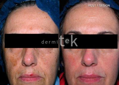 rejuvenecimiento con laser facial
