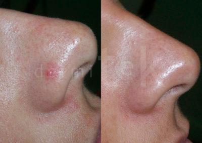 quitar arañas vasculares faciales