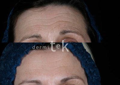 Botox facial en bilbao