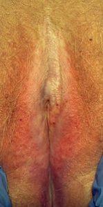 Clínica Dermitek, liquen escleroso y atrófico, tratamiento.