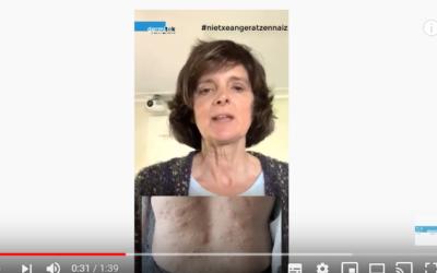 ¿Cuáles son los síntomas de la urticaria? – Consulta dermatología
